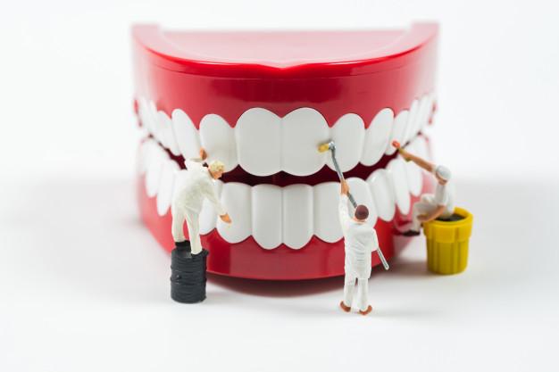 השתלת שיניים עושים בבי דנטל